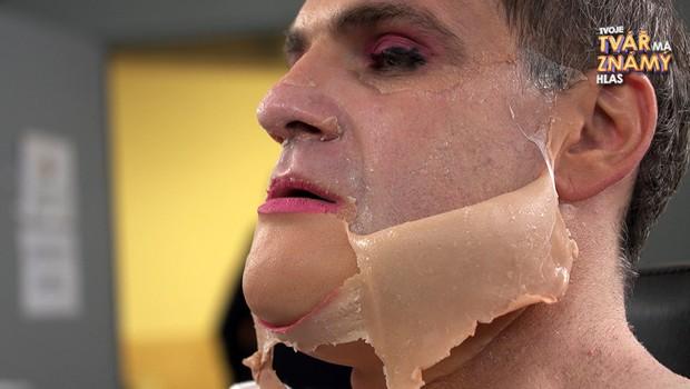 BONUS: Nechutná bolest! Jak vypadalo sundávání masky Jána Jackulika?