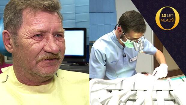 NEBYLO V TV: Exkluzivní záběry z ordinace. Podívejte se, jak Janovi dělali nové zuby